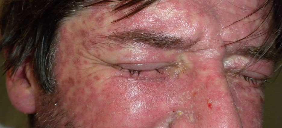 síndrome de Stevens-Johnson